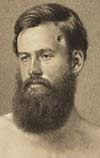 The Medical Case of Civil War Veteran Edson D. Bemis